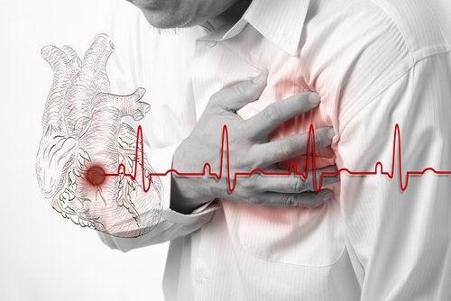 Heart Attack (Myocardial Infarction)