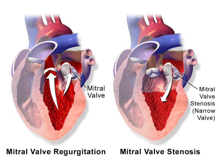 Mitral Valve Diseases