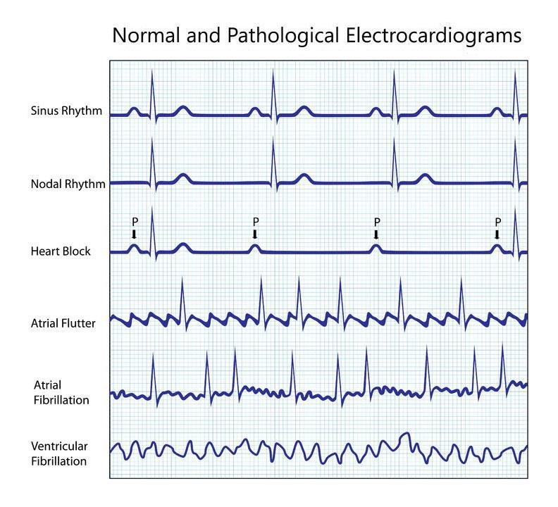 Rhythm Disorder in the Heart