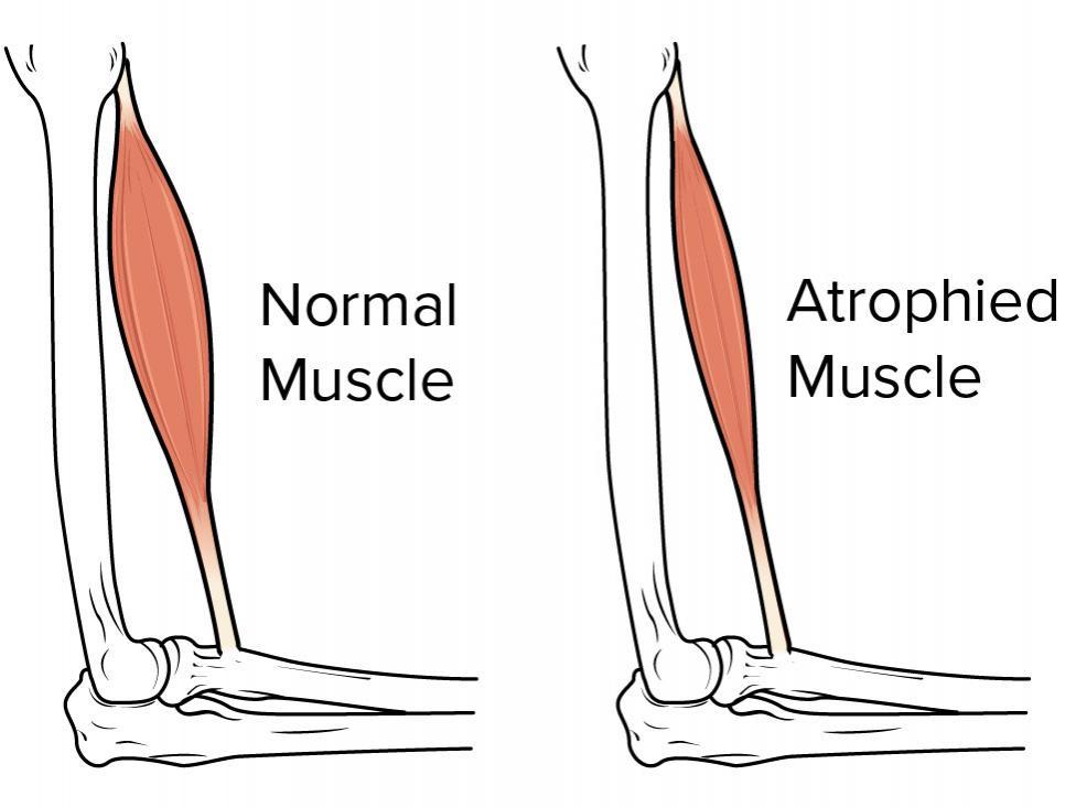 ضمور العضلات