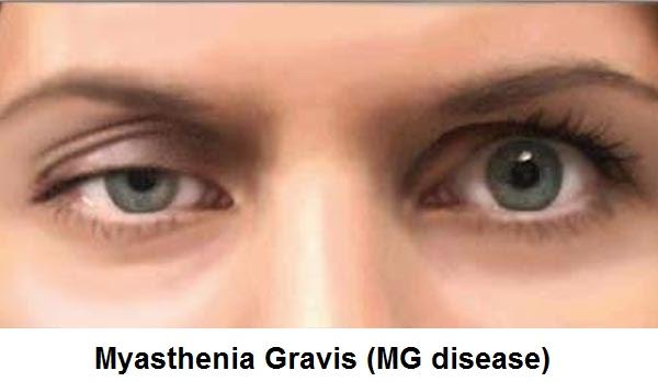 Myasthenia-Gravis-Disease