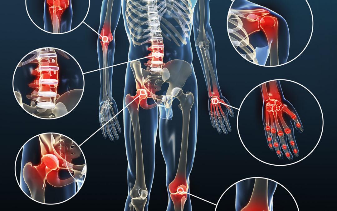 Osteoarthritis (Calcification)