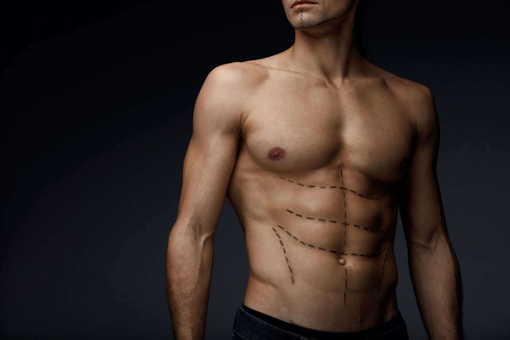 Pectoral Implant Surgery (Chest Muscle Surgery) Muscle Aesthetic