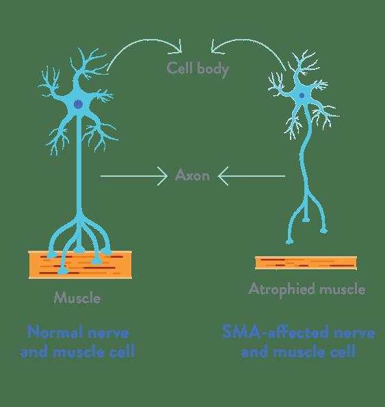 ضمور العضلات الشوكي (SMA)