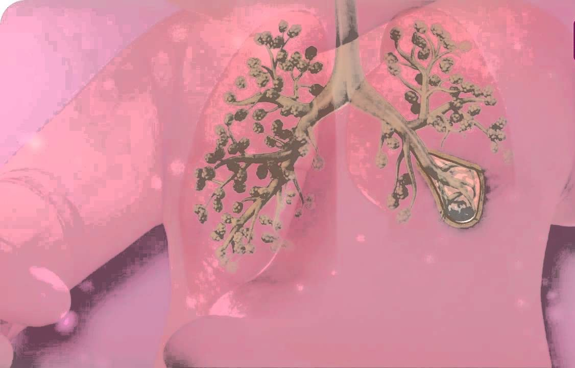 Bronchopulmonary Dysplasia (BPD)