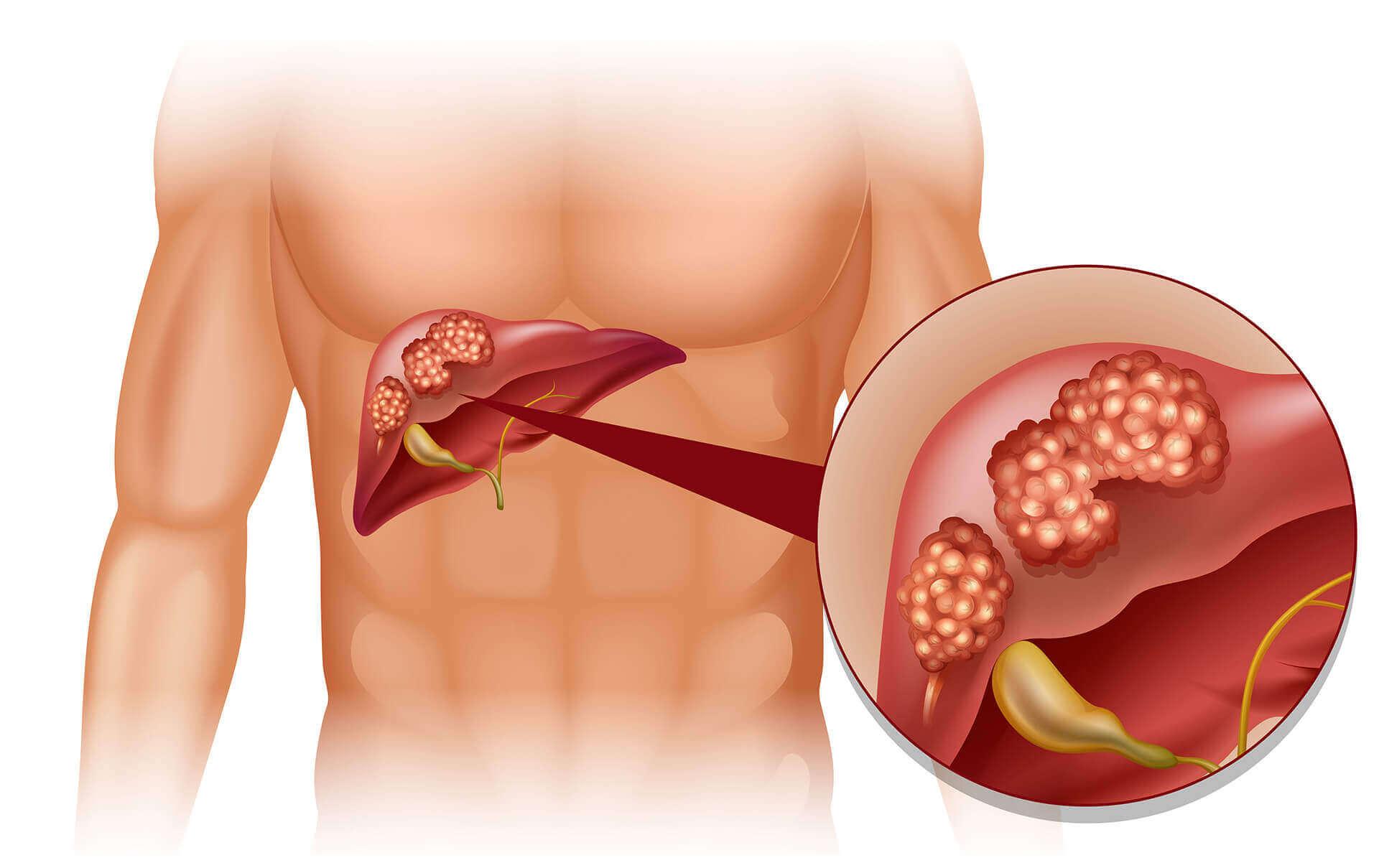 Hepatitis B (Jaundice)