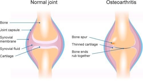 osteoarthritis-treatments