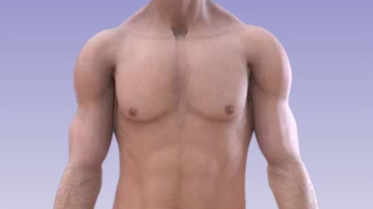 pectoral implant