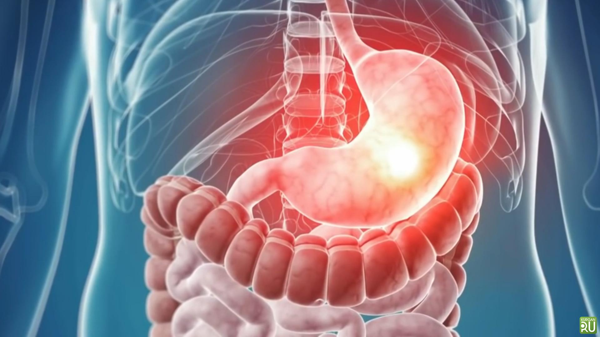Stomach Diseases
