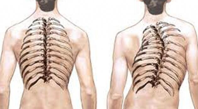 curvature of the spine
