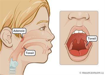 Tonsil surgery .