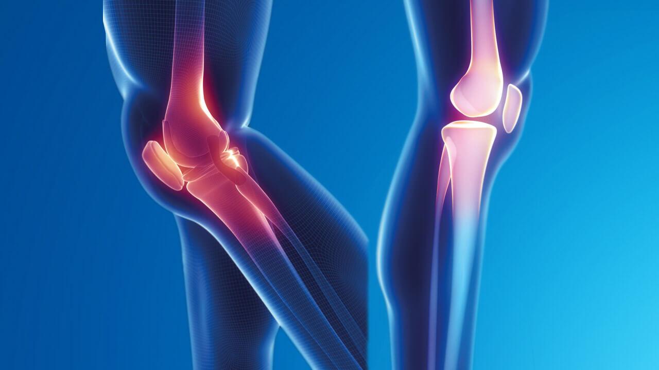 Bones Diseases