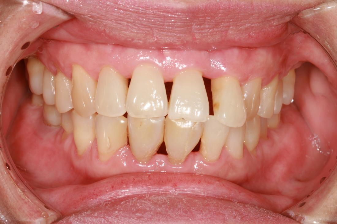 what-is-periodontitis