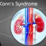 Conn Syndrome