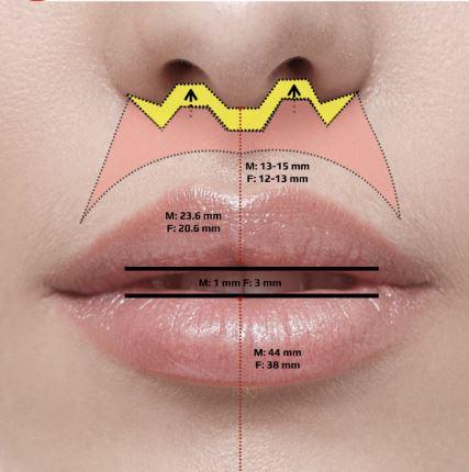 Lip Lifting
