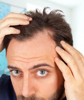 FUE-Hair-Transplantationvv