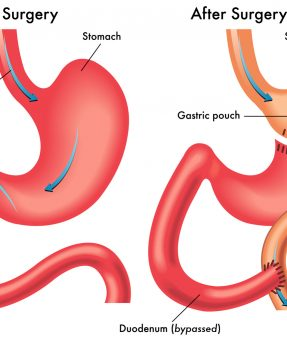 Gastric-Bypass-istanbul