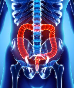 Rectal-Diseases
